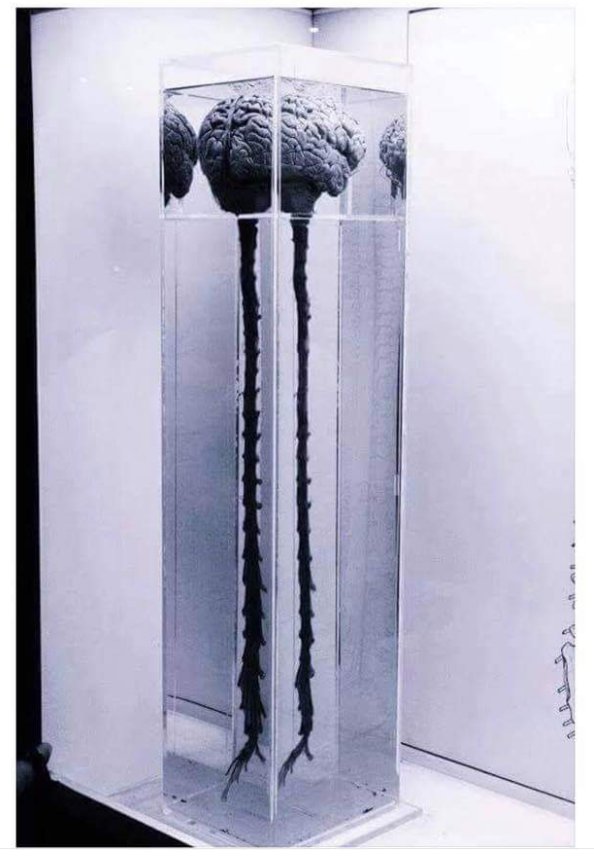 IMG_6733 - Brain Training. Neuro Science. Brain + Spinal Cord in tall container - From Internet - Original source unknown. www.TheHollyTreeTales.com